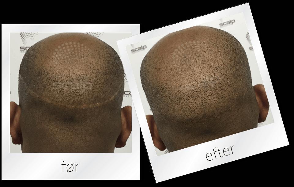 Camouflering af ar efter hårtransplantation med FUE