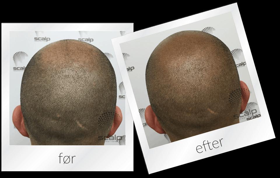 SMP - Scalp Micropigmentation til mænd. Lavet med Bounce/Shave teknik, hos Scalp Innovation