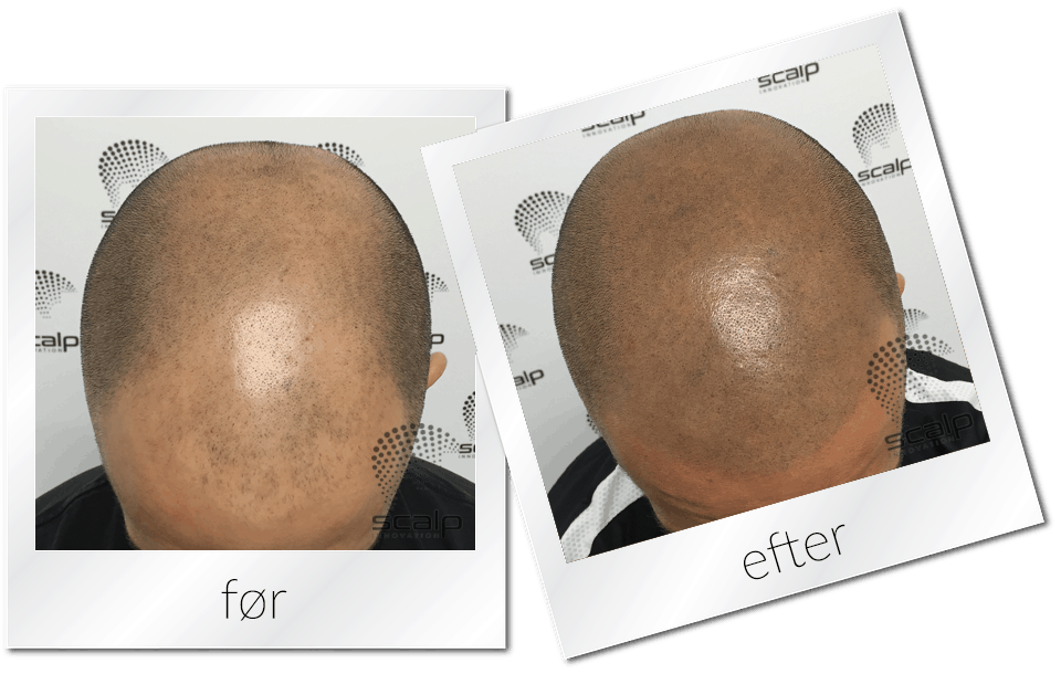 Scalp Micropigmentation til mænd. Lavet med Bounce/Shave teknik, hos Scalp Innovation