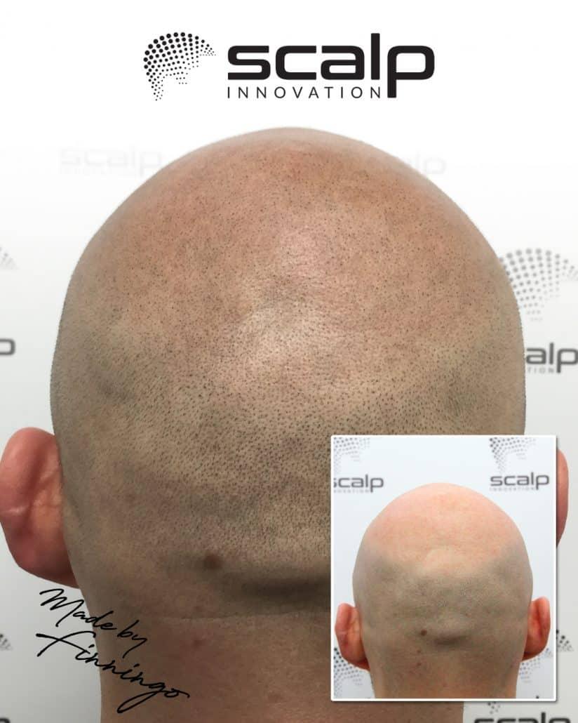 "SMP - Scalp Micropigmentation til mænd. SMP by ""Finningo"" @ Scalp Innovation"