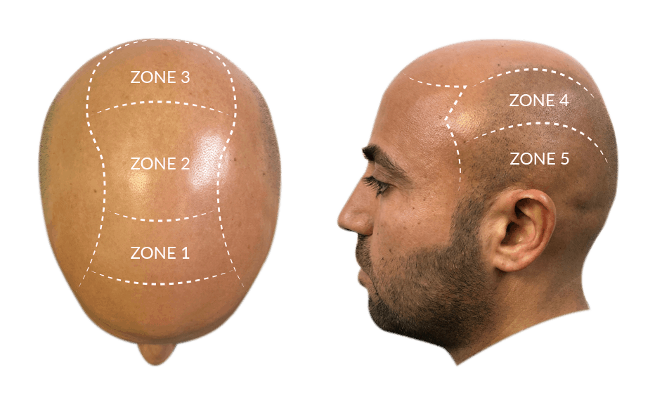 HEAD ZONES SCALP INNOVATION