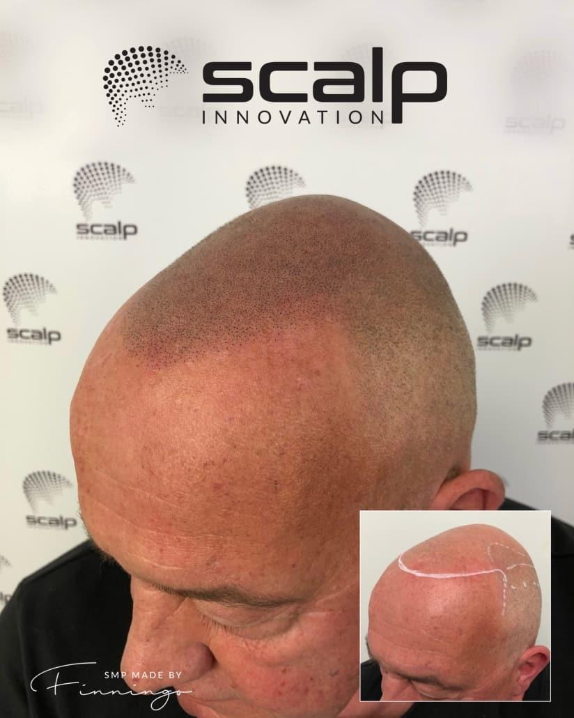 "SMP – Scalp Micropigmentation til mænd. SMP by ""Finningo"" @ Scalp Innovation"